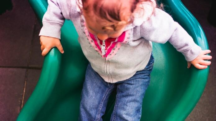 Toddler's burn raises warning that metal