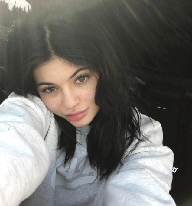 Celebrities Who You Didn't Know Had Freckles | Kylie Jenner