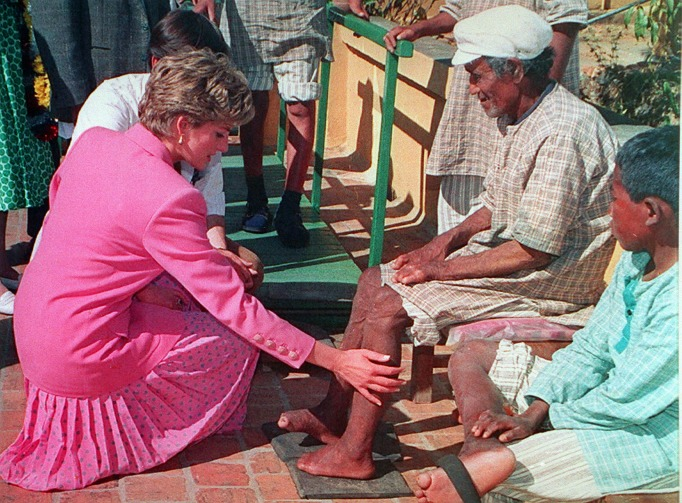 Iconic images of Princess Diana: Diana and the leper