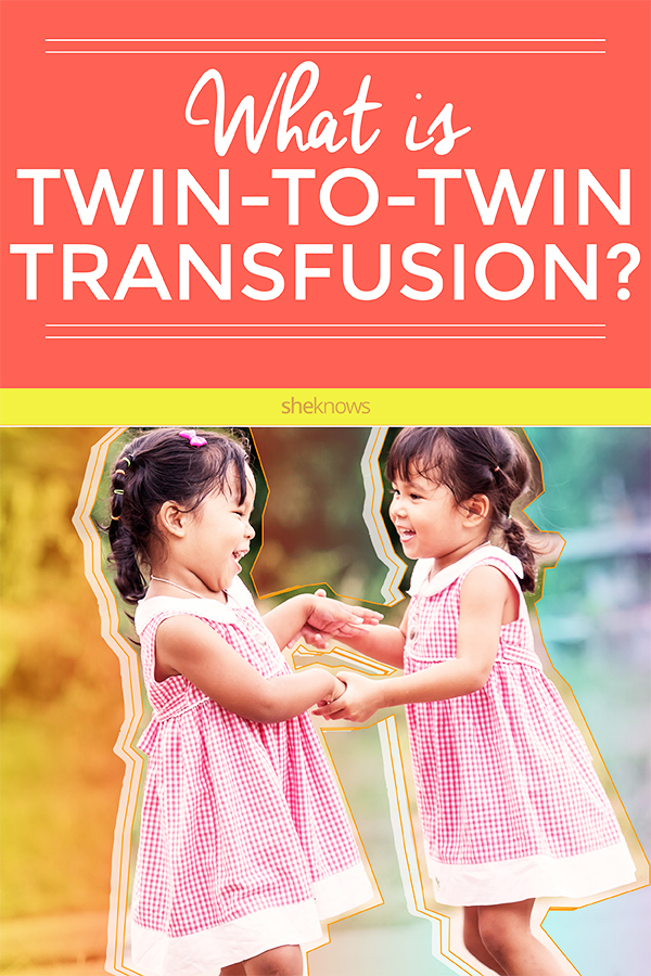 What is twin-to-twin transfusion