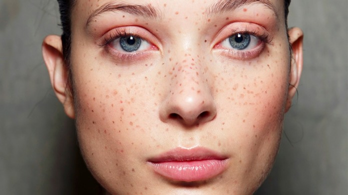People Are Tattooing Freckles on Their