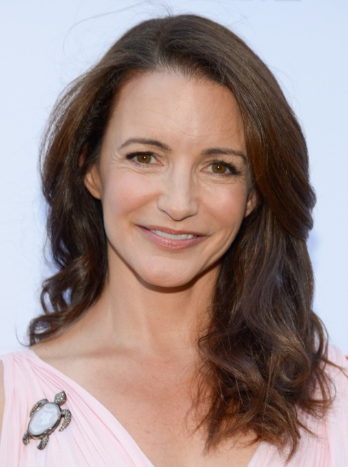 Female Celebrities Hair Loss | Kristin Davis