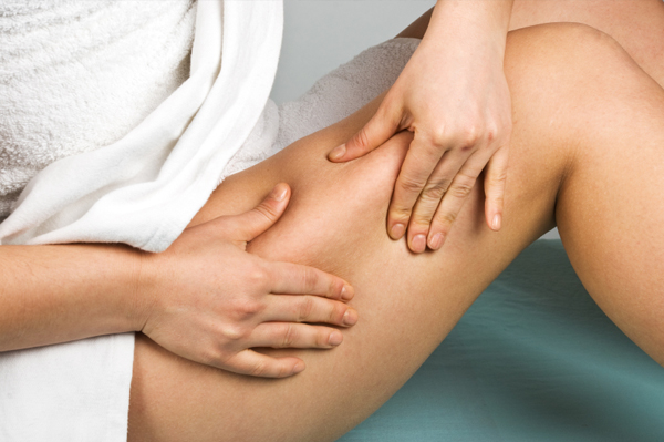 Woman checking cellulite