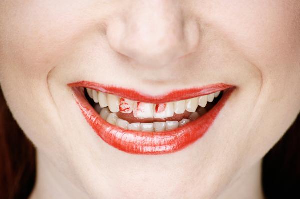 Woman with lipstick on teeth
