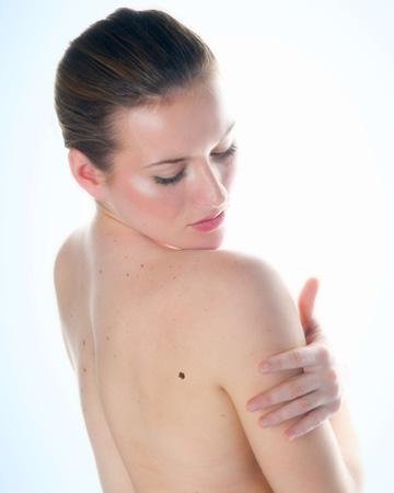 Woman checking out mole
