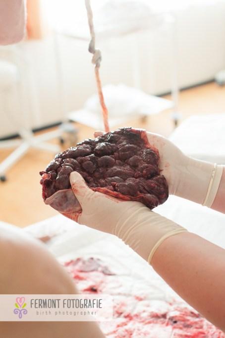 placenta-and-umbilicus