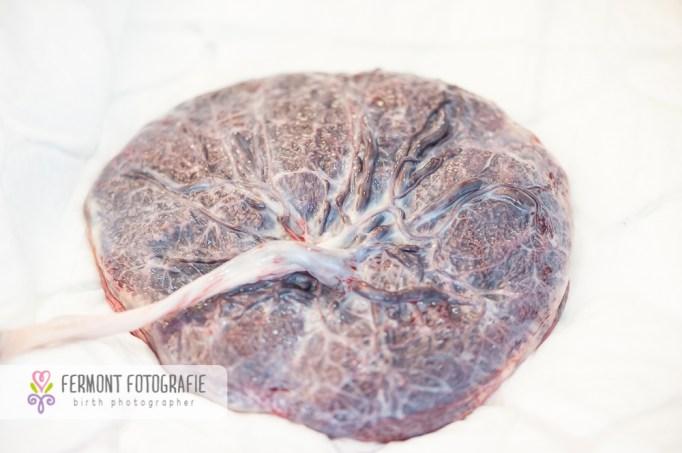 placenta-fetal-side
