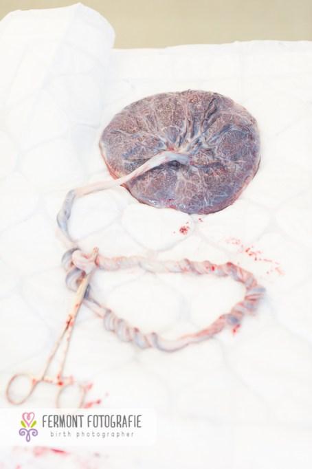 fetal-placental-view