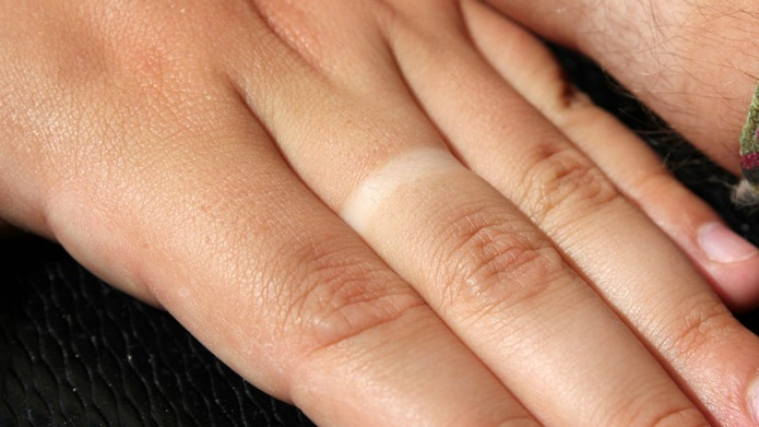 Victorian man loses wedding ring, the