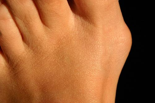 Bunions: What are bunions and how