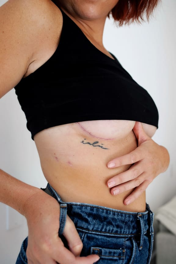 what is a double mastectomy look like