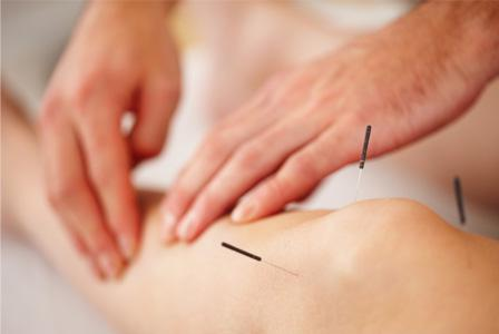 How acupuncture can conquer your holiday