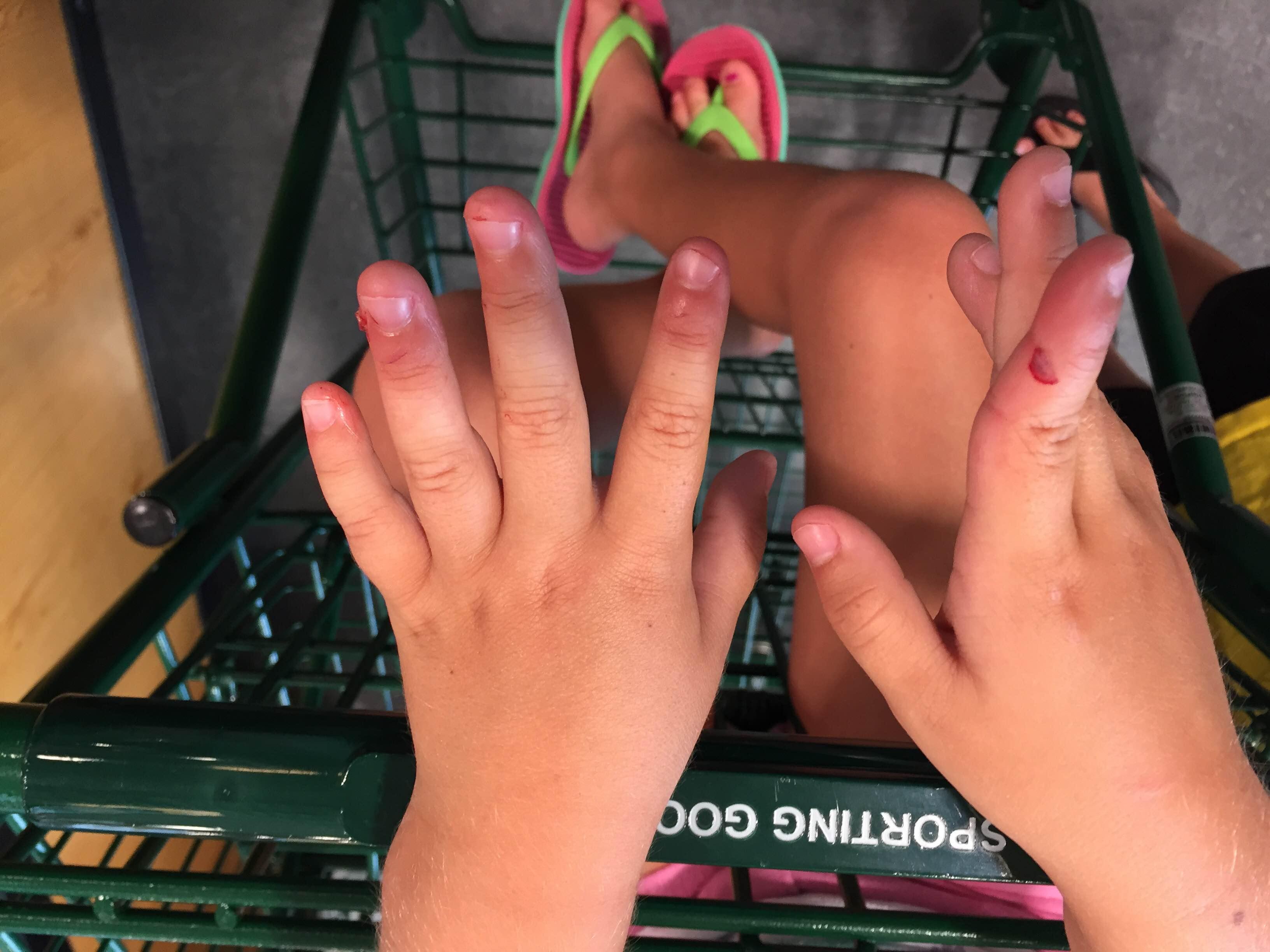 cut-on-girls-hand
