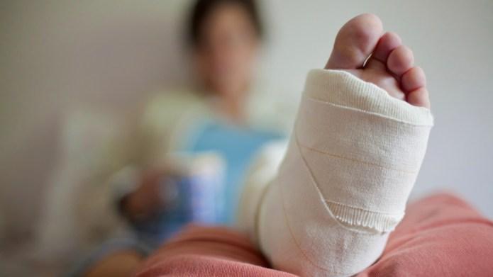 How her broken bones strengthened their