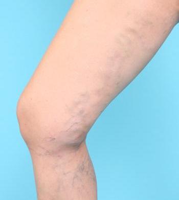 Does running cause varicose veins?