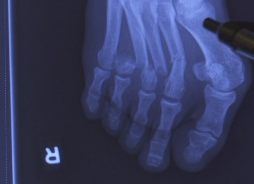 An X-ray of a Save My Life injury.