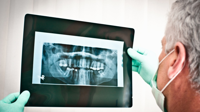 Dentist examining dental x-rays