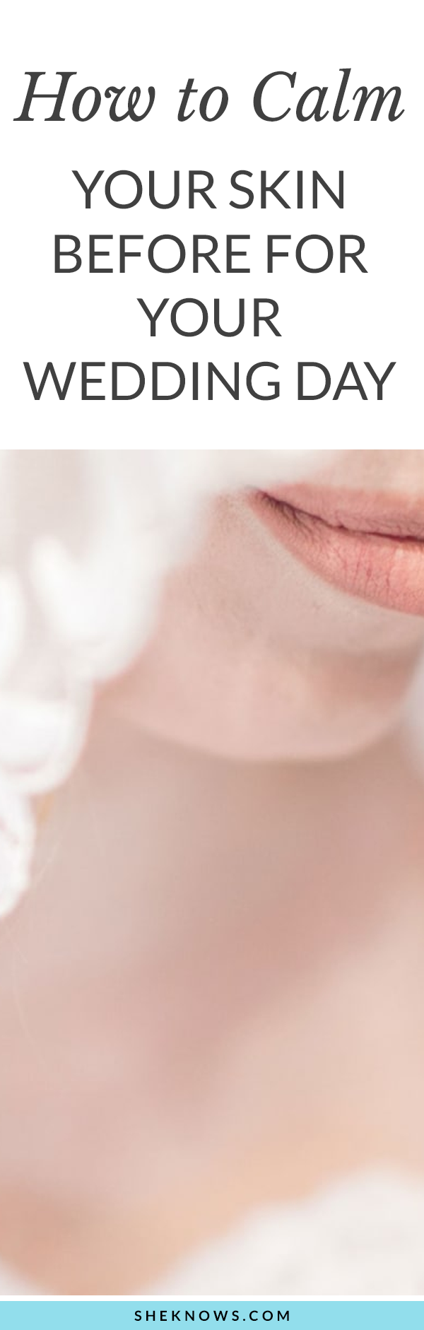 Everything I Did To Calm My Acne-Prone Skin a Week Before My Wedding