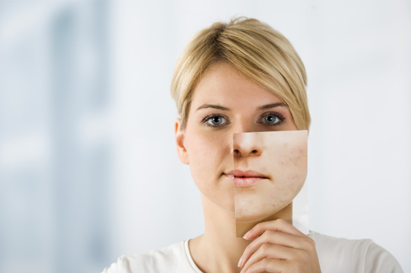 Woman with problem skin