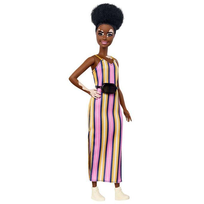 Black & Mixed-Race Dolls Your Kid Will Love: Vitiligo Barbie