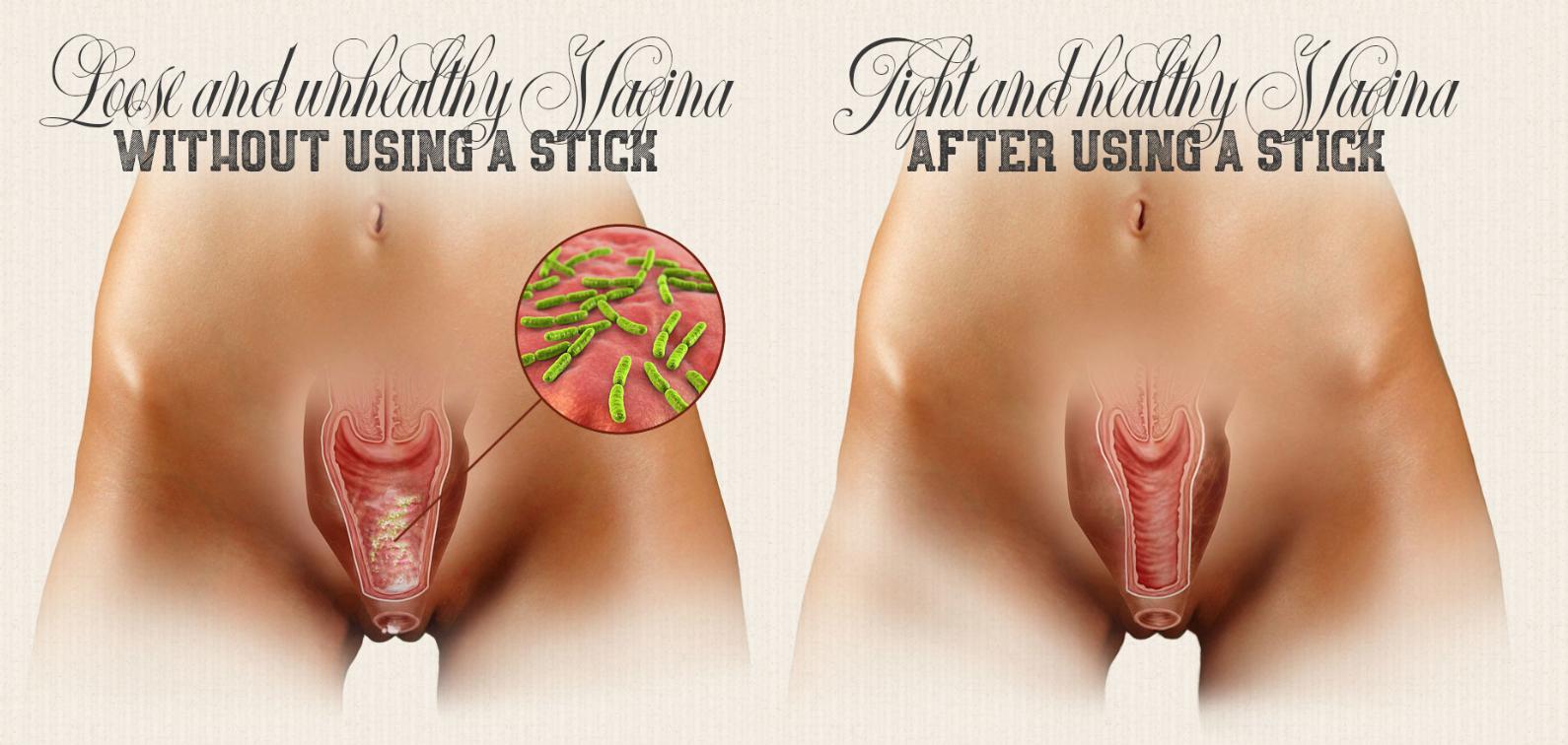 Lets talk vaginal tightening
