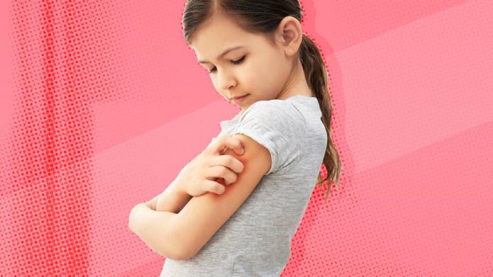 eczema-scratching-skin-irritation