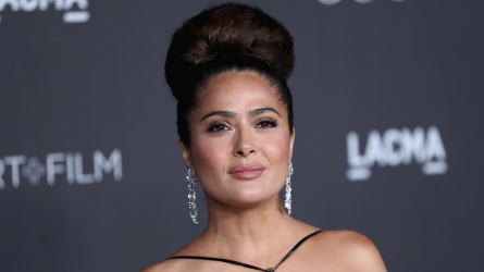 Salma Hayek Lip Injections