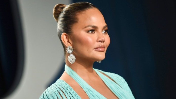 Chrissy Teigen Calls Out a Hater
