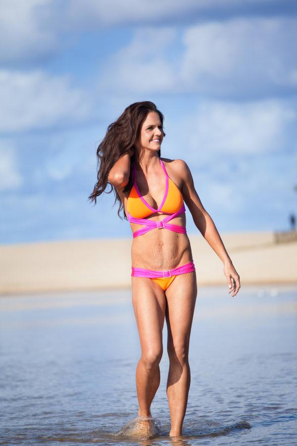 Bikini mom proudly bares post-natal stretch marks