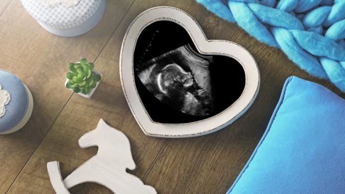 Best Sonogram Photo Frames on Amazon